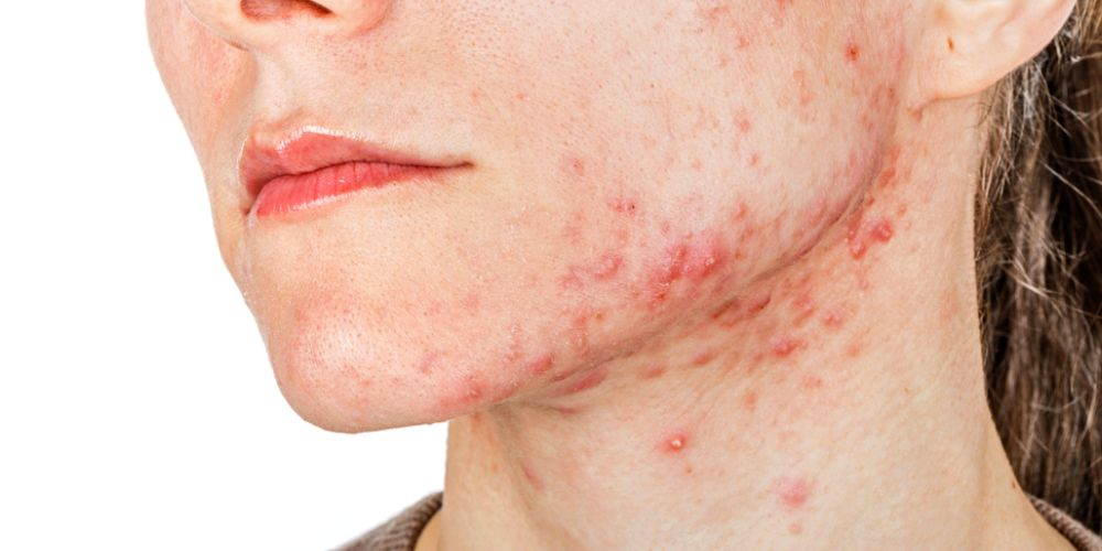Arti letak jerawat di dagu dan rahang adalah ketidakseimbangan hormon