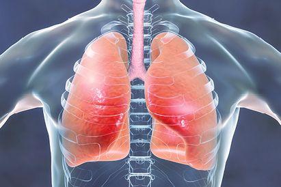 infeksi paru