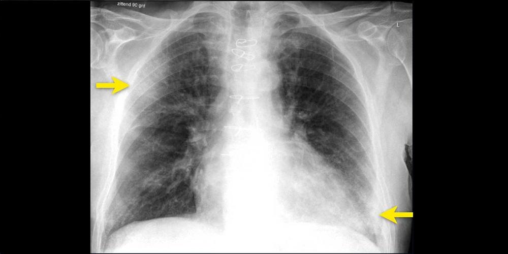 Gambar paru pasien corona terlihat ada warna putih