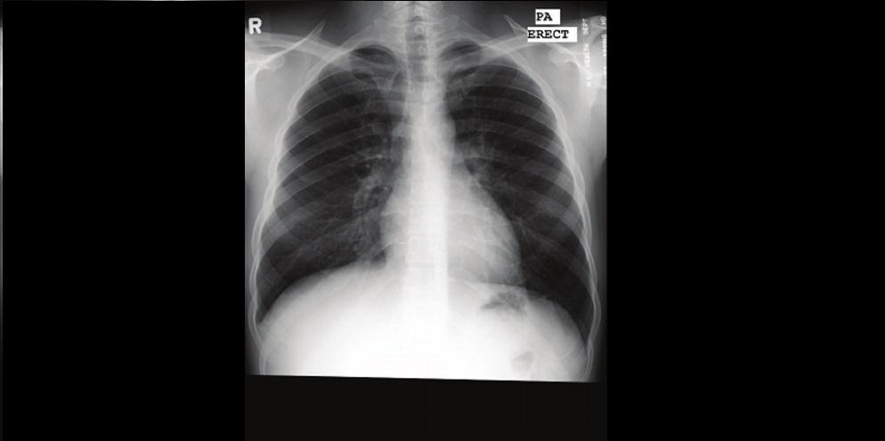 Gambar paru-paru normal non Covid-19