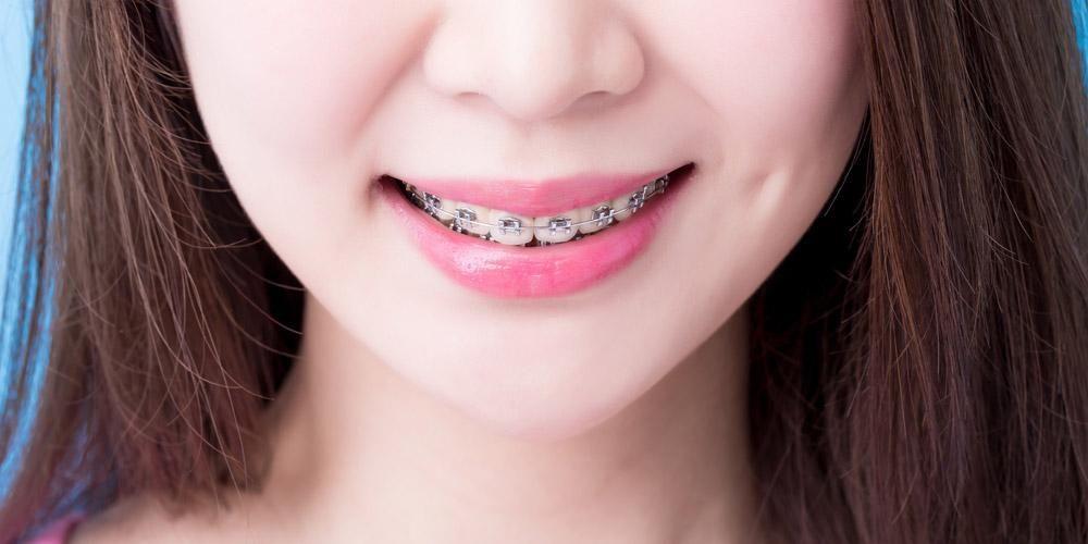 Kawat gigi efektif rawat gigi tonggos