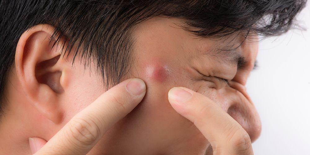 BIsul tanpa mata bisa disebabkan oleh infeksi bakteri