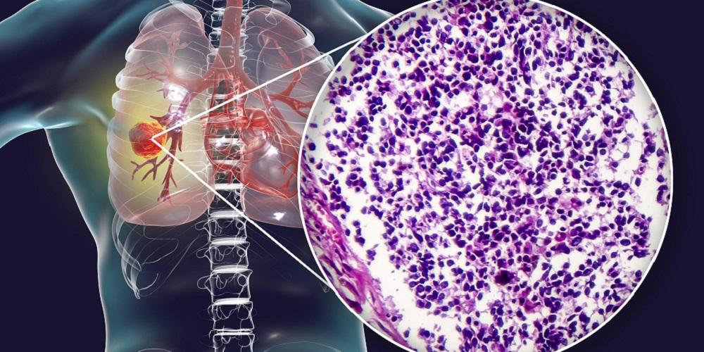 Kanker paru-paru adalah kanker yang paling banyak menyeran laki-laki Indonesia