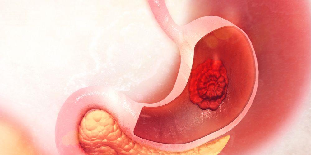 kanker lambung dan maag kronis