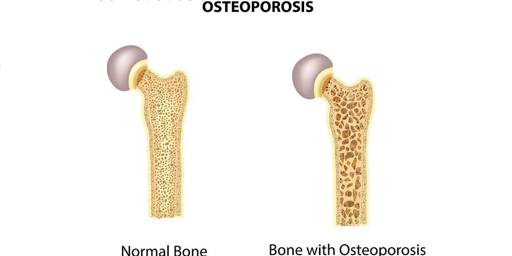 Gambar tulang osteoporosis