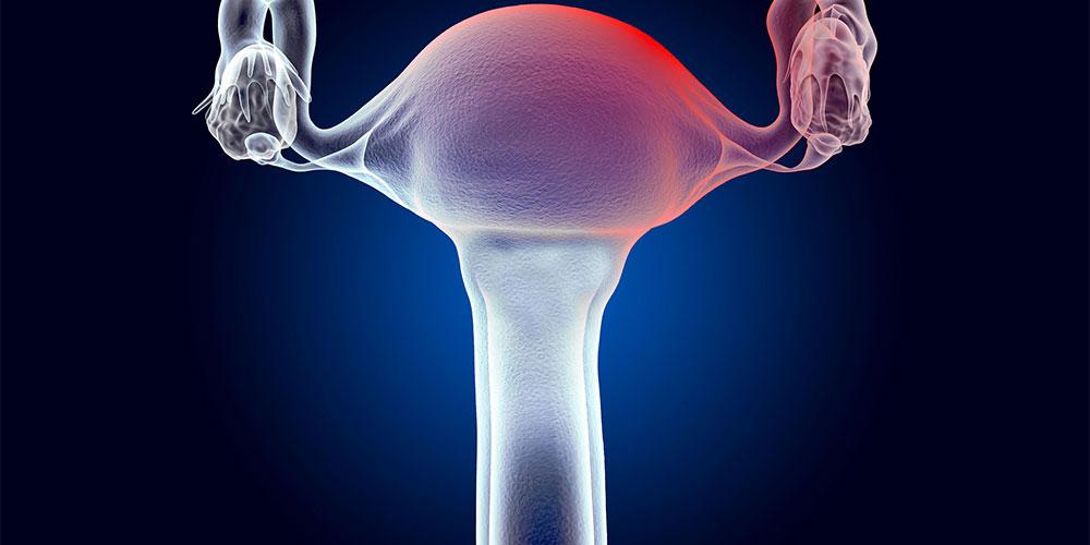 perdarahan uterus