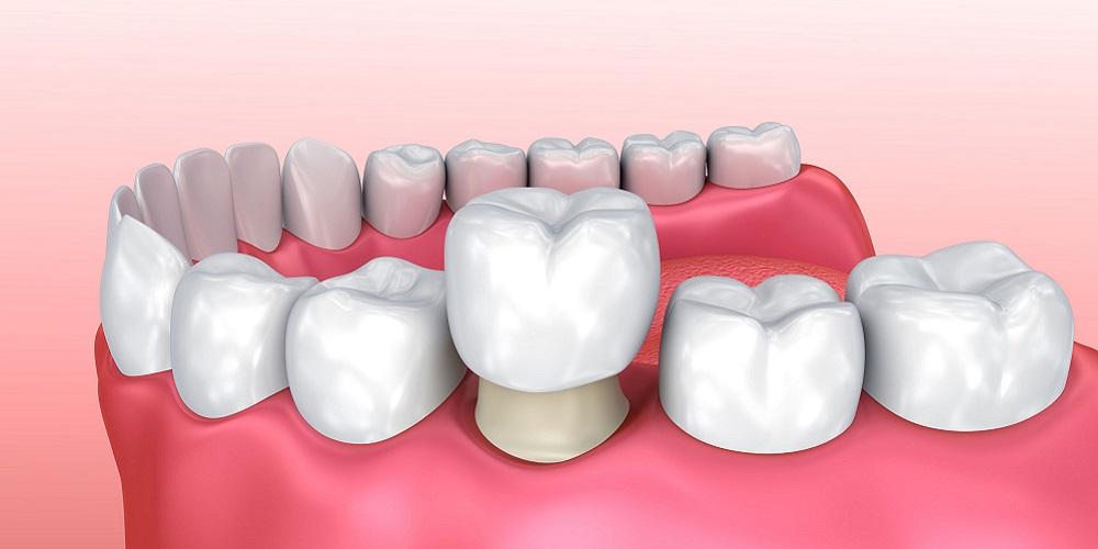 Crown gigi bisa tutupi gigi yang hitam