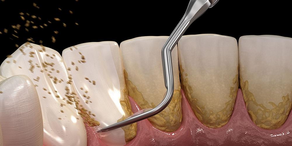 Gambar scaling gigi menhancurkan karang gigi