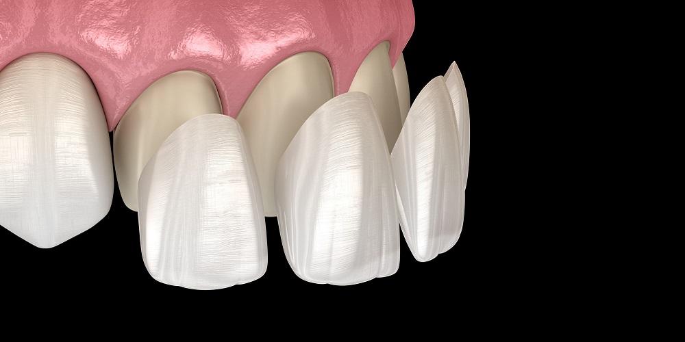 Veneer gigi solusi gigi hitam