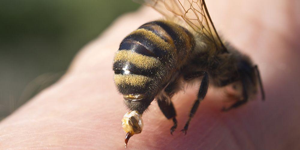 sengatan lebah bisa memicu alergi