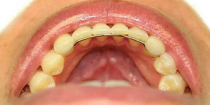 Retainer gigi cekat (sumber: askanorthosontist)