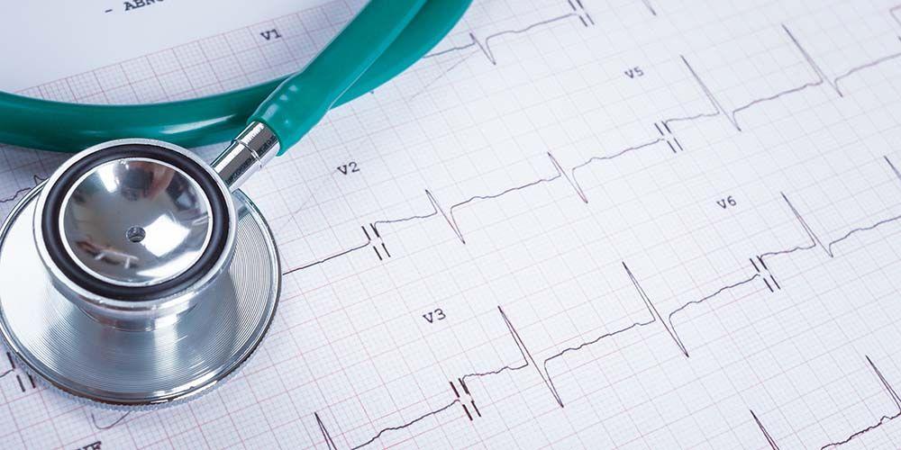 Gangguan irama jantung diatasi dengan obat antiaritmia