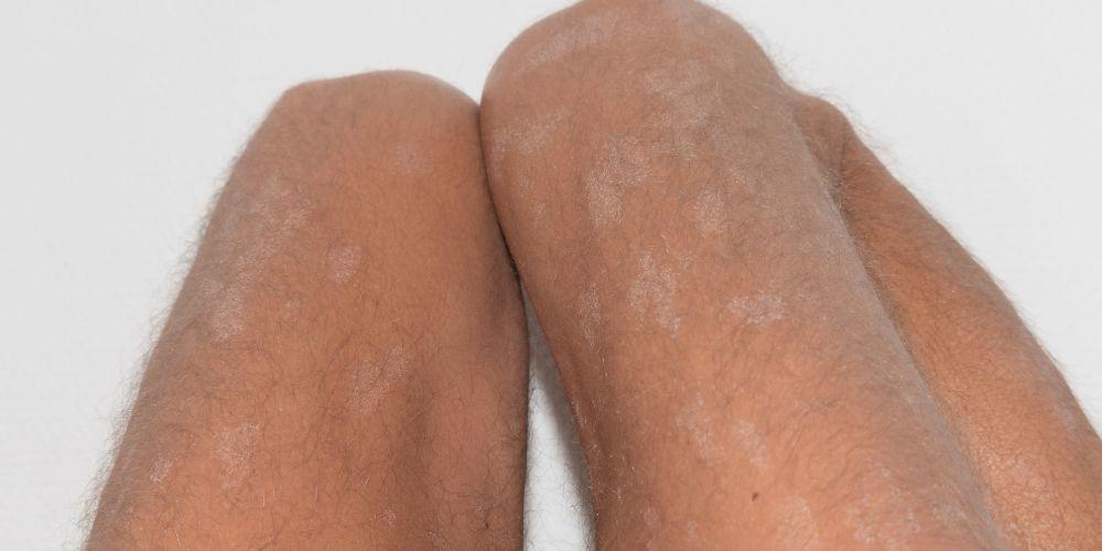 Kulit kaki kering bisa menimbulkan rasa gatal