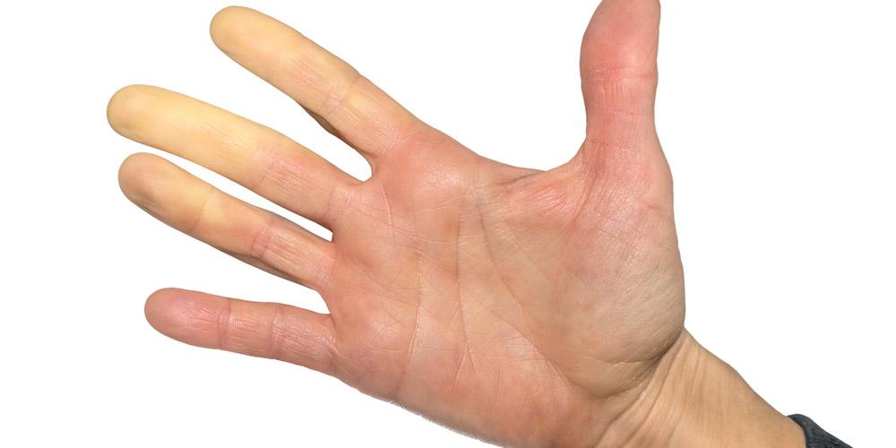 Sindrom raynaud serang telapak tangan