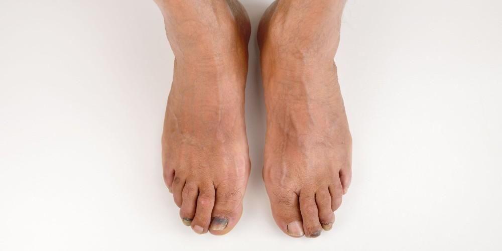 Covid toes, gejala Covid-19 yang khas