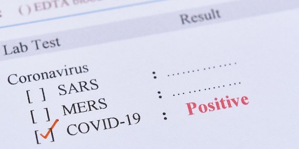 Urutan Gejala Covid-19 berbeda dengan SARS dan MERS