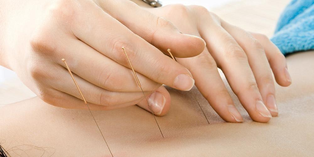 Pengobatan akupuntur tusuk jarum