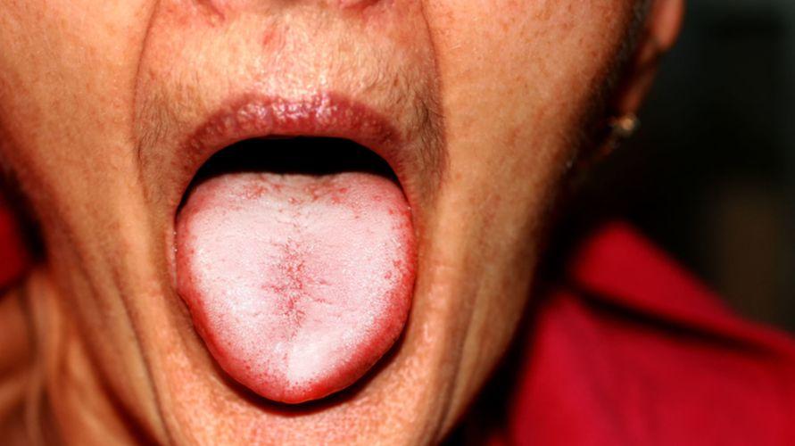 Candiadisis oral