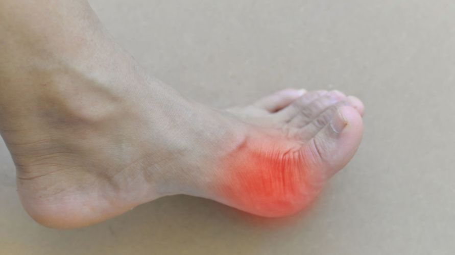Jempol kaki bengkak