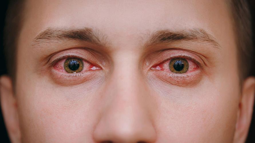 gejala long covid pada mata