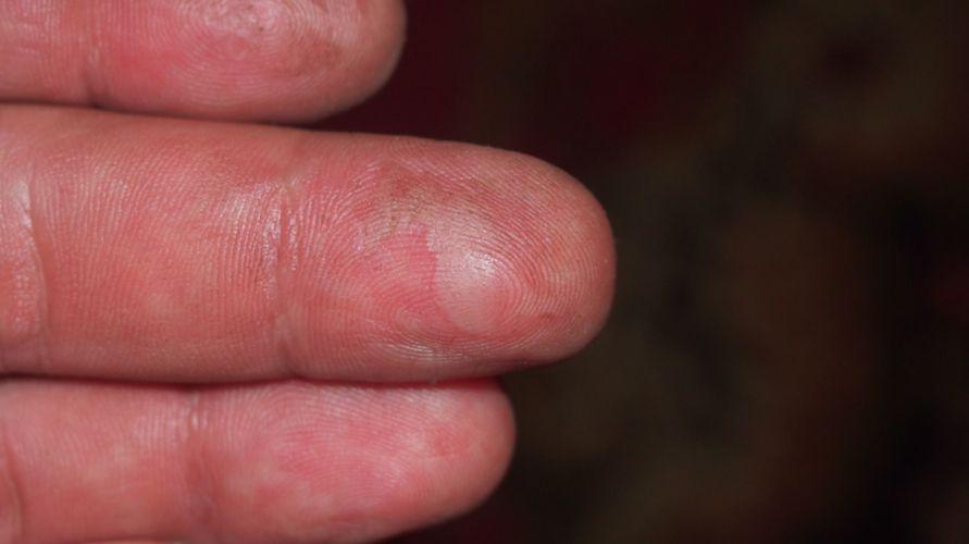 Cara mengobati luka bakar yang menggelembung dapat dilakukan di rumah