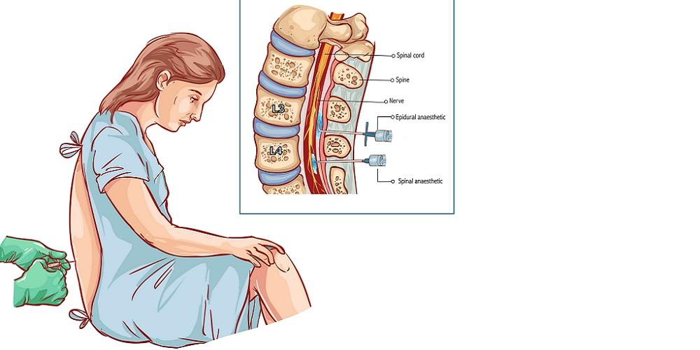 Gambar prosedur suntik epidural