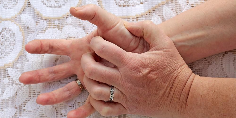 gejala stroke tangan kaku