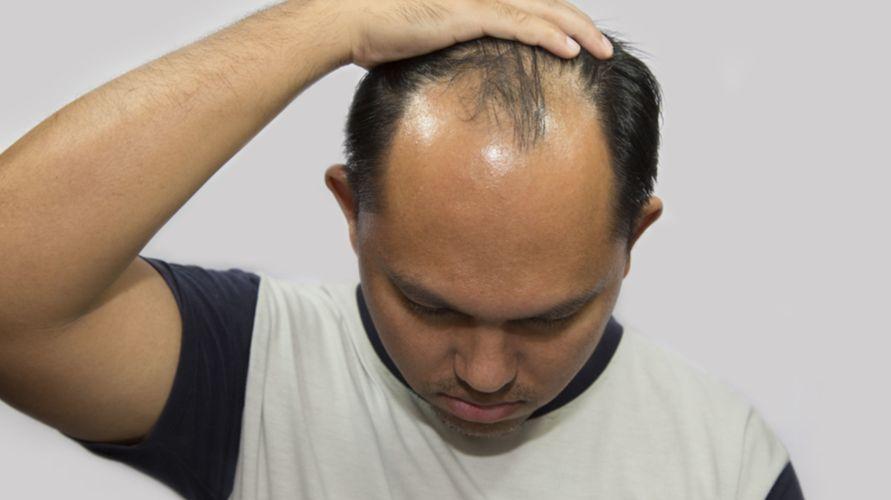 Rambut botak dapat diatasi dengan berbagai bahan alami