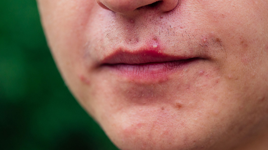 Arti letak jerawat di mulut berkaitan dengan gangguan pencernaan