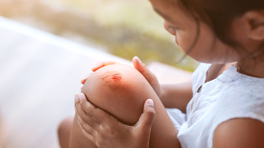 Menyembuhkan luka bisa jadi manfaat petroleum jelly