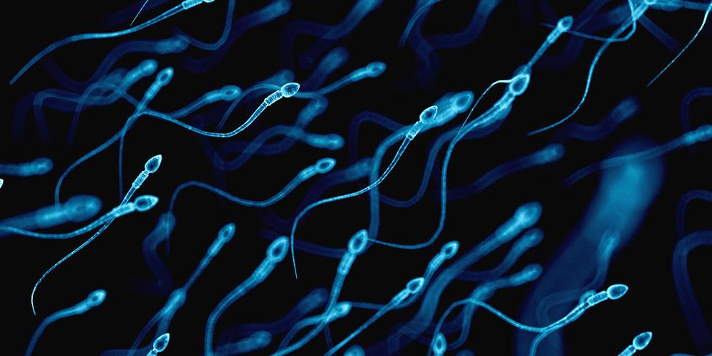 Sperma kuning dapat disebabkan oleh kelebihan sel darah putih di dalam sprema