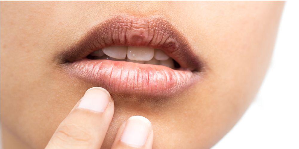 Bibir pecah dapat menyebabkan bibir kesemutan