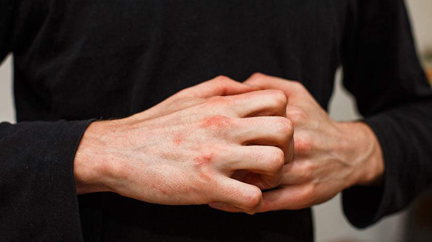 tangan gatal