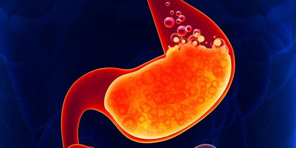 Obat asam lambung di apotik bisa dipilih untuk meredakan gejala