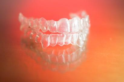 Kawat gigi anak ada yang berbentuk transparan