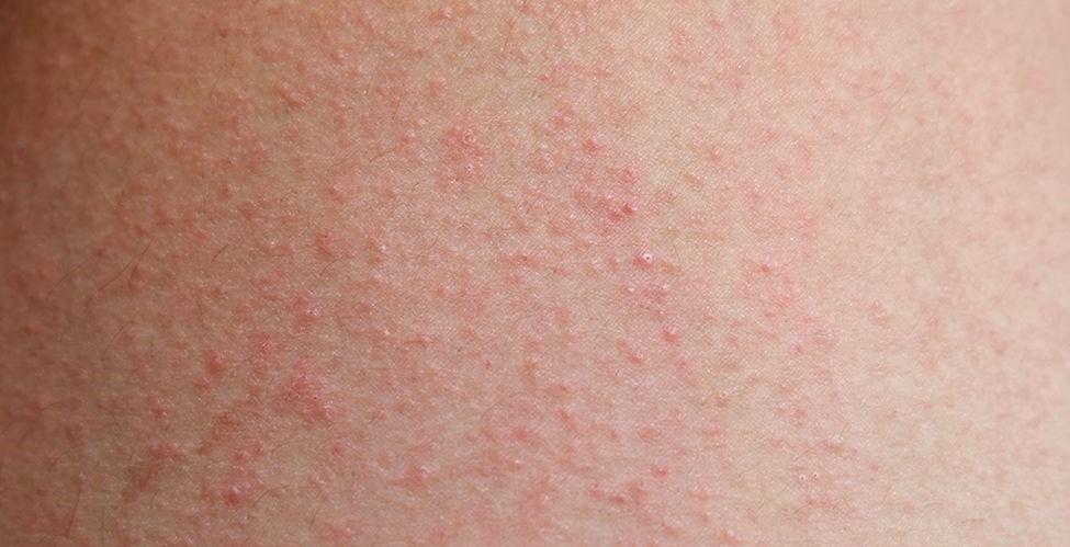 Peradangan kulit bisa disebabkan oleh biang keringat