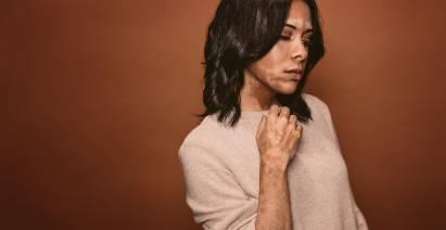 Wanita dengan vitiligo