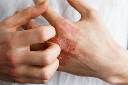 Dermatillomania membuat penderitanya senang mencabuti kulit kering pada luka