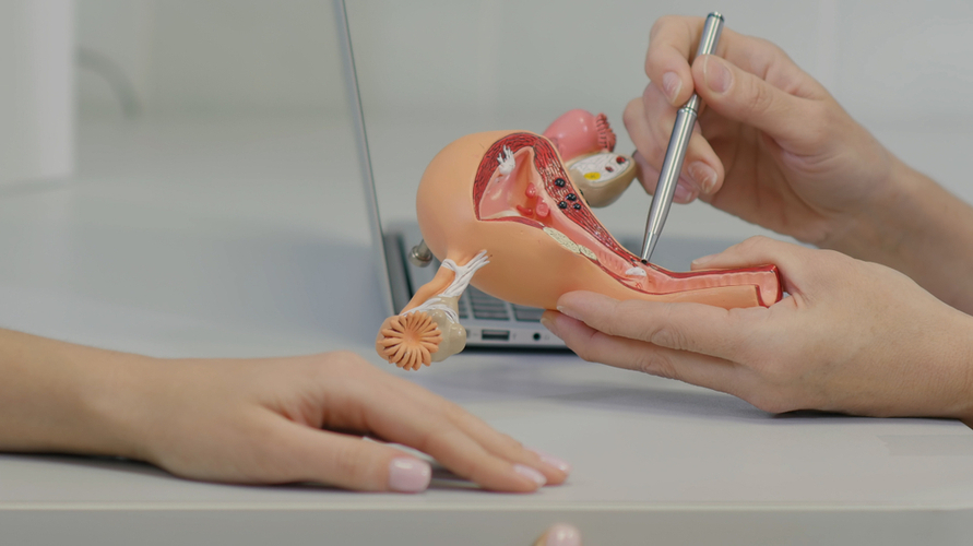 Cara mengatasi menstruasi berlebihan salah satunya dengan opeasi
