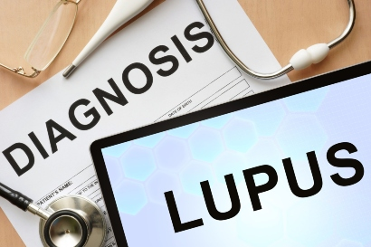 Lupus menjadi salah satu efek samping lansoprazole yang dikonsumsi dalam waktu lama