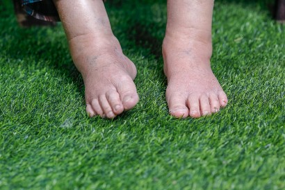 Salah satu gejala gagal jantung adalah pembengkakan pada kaki