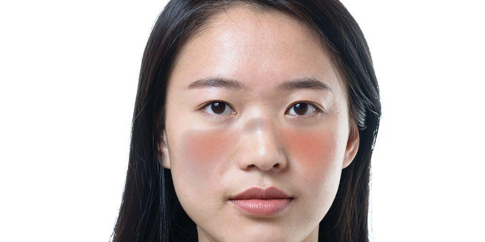 Lupus, penyakit autoimun yang umum menyerang permepuan