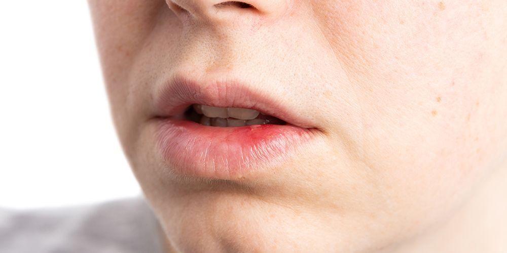 Contoh penyakit infeksi jamur adalah candidiasis oral alias infeksi jamur mulut