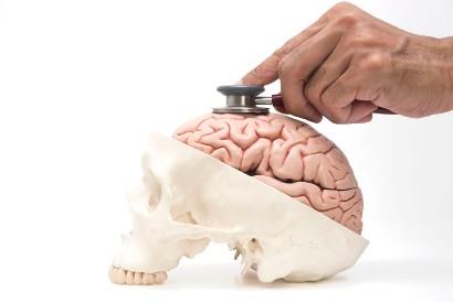 Mengonsumsi keju parmesan dapat membantu menjaga kesehatan otak