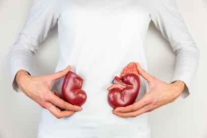 Komplikasi gagal jantung adalah kerusakan pada ginjal