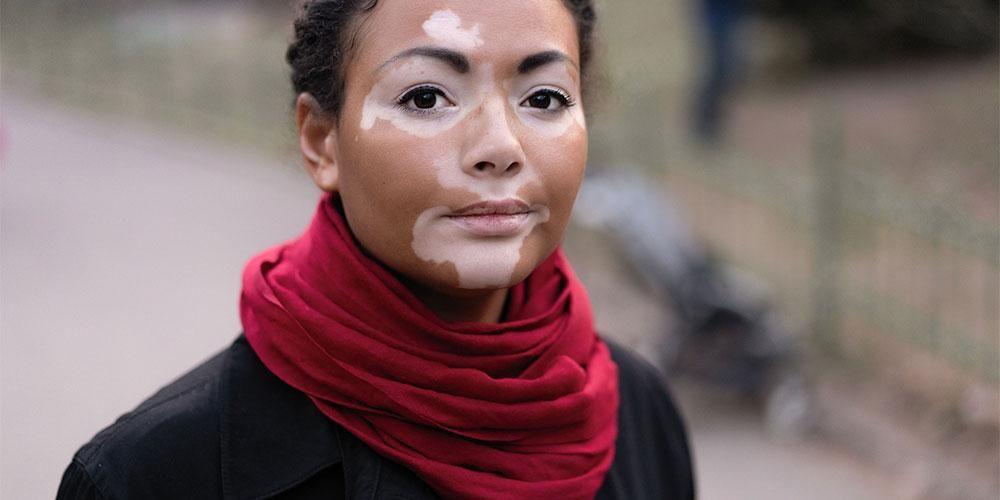 Vitiligo adalah salah satu kelainan pigementasi