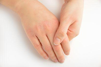 Kulit tangan kering dan mengelupas
