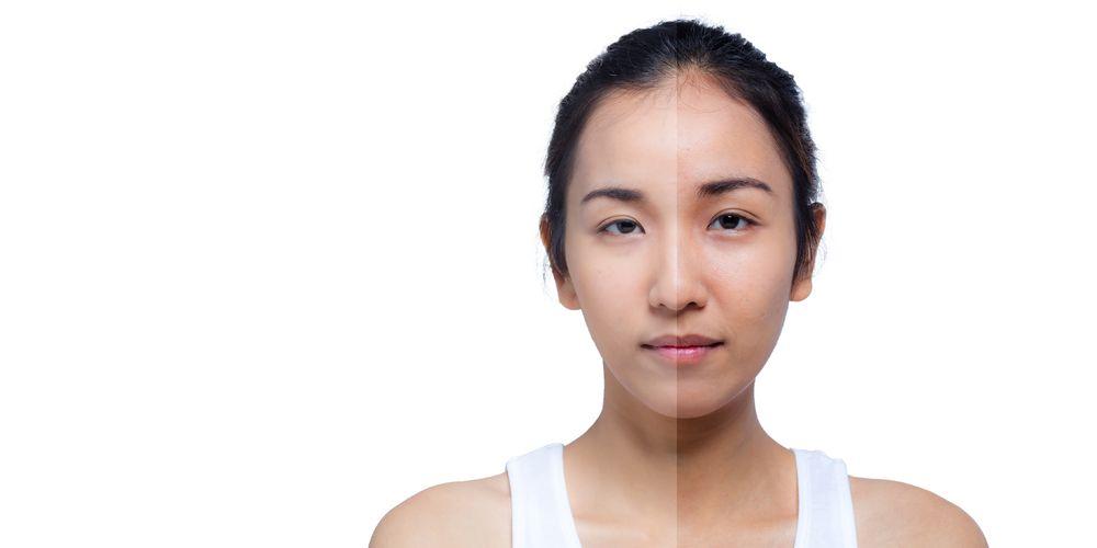Kulit jadi lebih gelap adalah ciri-ciri tidak cocok dengan cream wajah