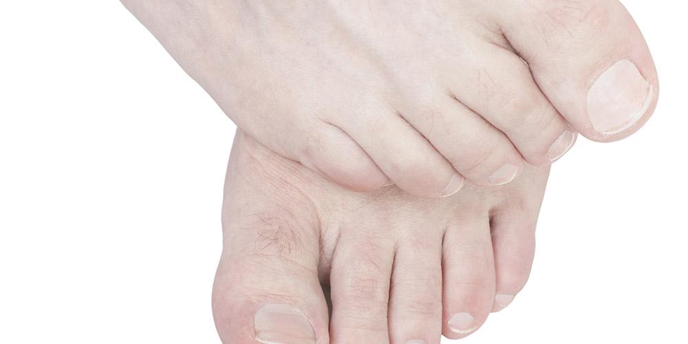 Merendam kaki dalam air garam dapat menjaga kebersihan kaki