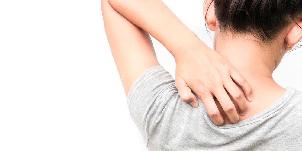 Jangan menggaruk area yang gatal agar neurodermatitis cepat pulih